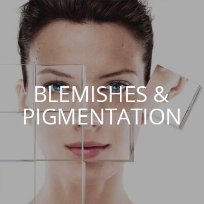 Blemishes & Pigmentation