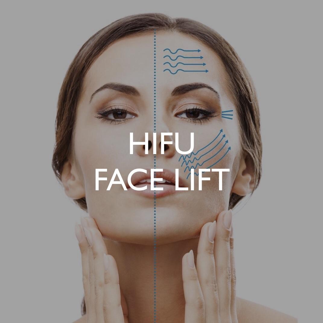 HIFU Face Lift