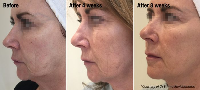 what is a skin booster