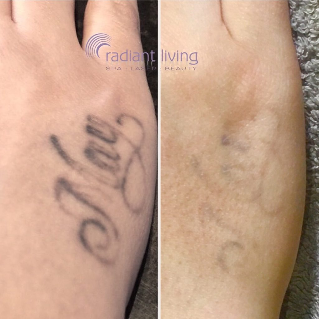 Laser Tattoo Removal experts with 15 years experience ...