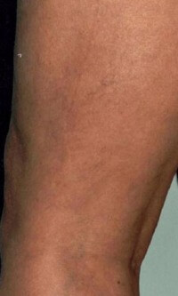 vein-removal-leg