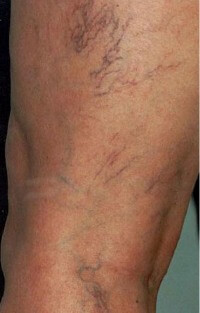 remove-red-veins-before