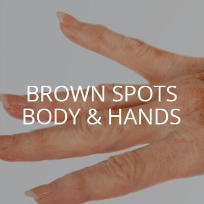 brown spots body hands