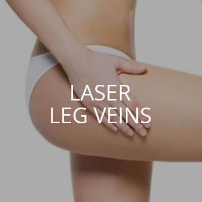 laser leg veins