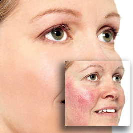 Can Rosacea be treated?
