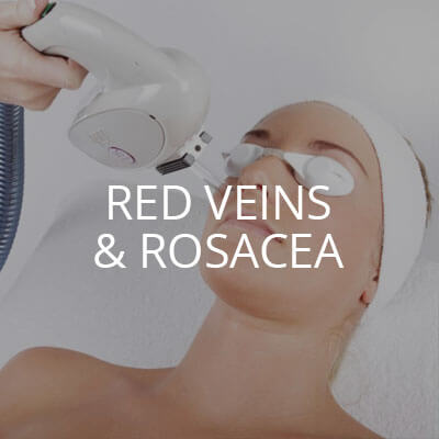 red veins rosacea