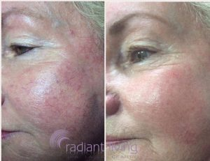can rosacea be treated