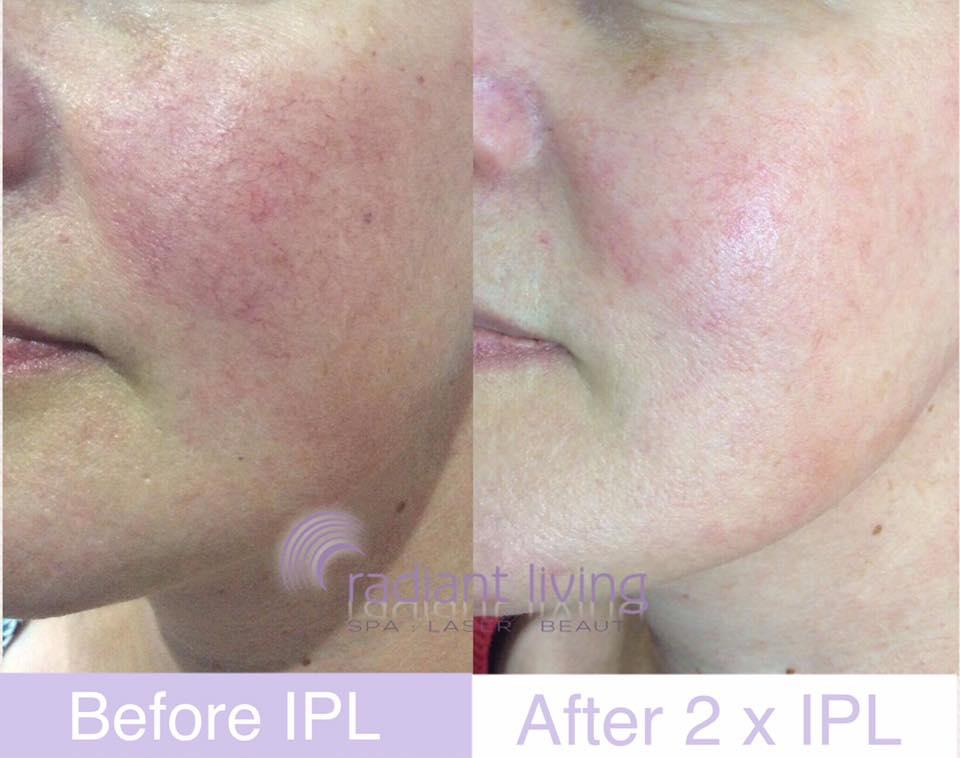 Laser red face veins