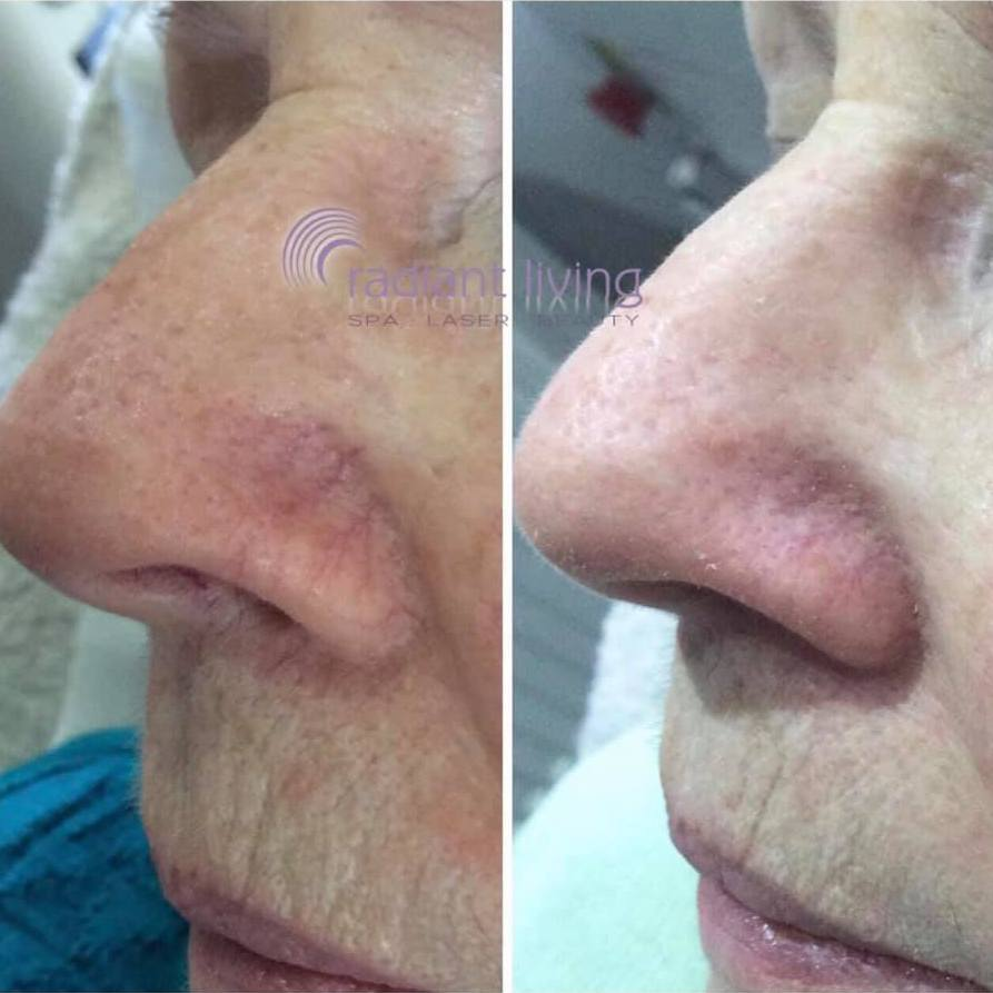 Red Veins on Nose - Laser treatment before and after