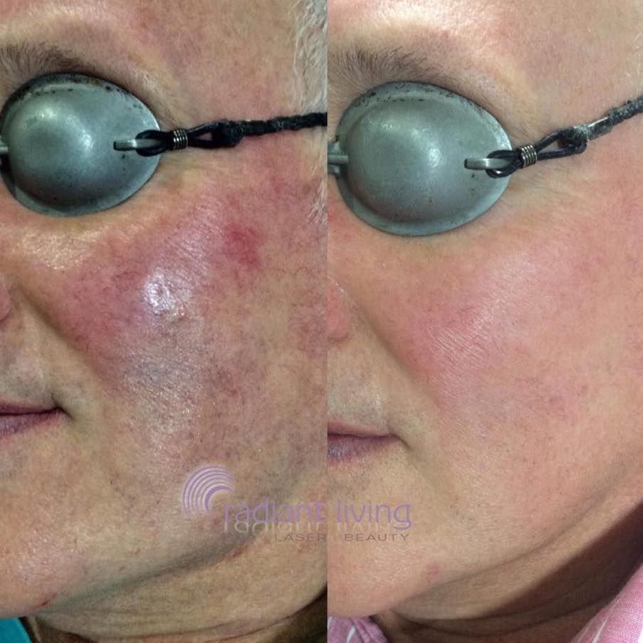 Before and After laser therapy to remove red face veins.