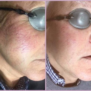 Spider Veins removal on cheeks