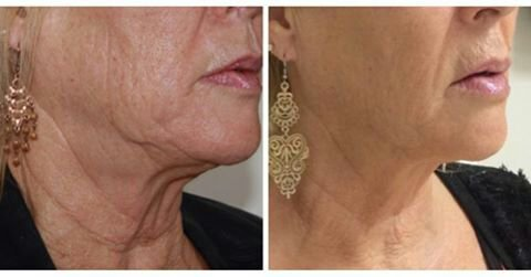 HIFU the world's most advanced non surgical face lift at