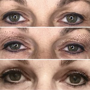 tighten eyelids without surgery