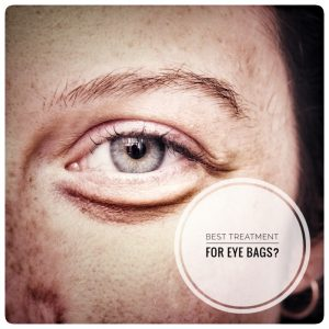 Best treatment for Eye Bags