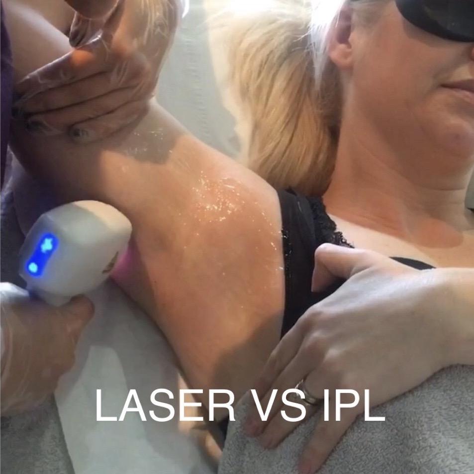 Which is better IPL or Laser Hair Removal?