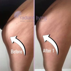 Fat Freeze Before and After