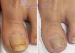 Before and After Fungal Toenails