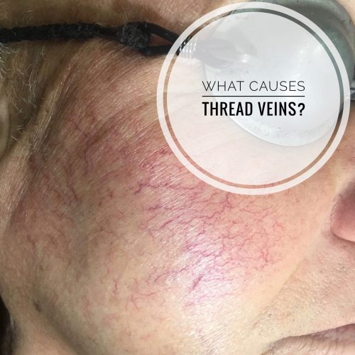 What causes thread veins on your face?