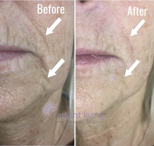 Nose to Mouth Fillers