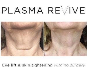 Plasma Non surgical facelift