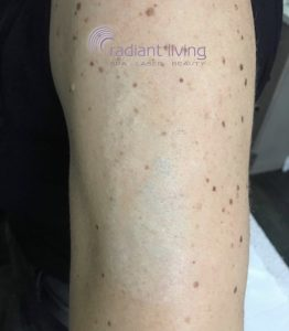 Will laser tattoo removal leave a scar