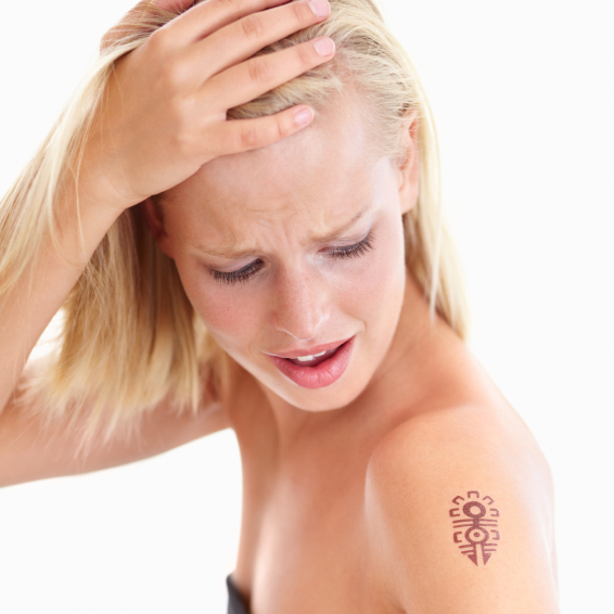 Will Laser Tattoo Removal leave a scar?