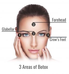Where can Botox be used