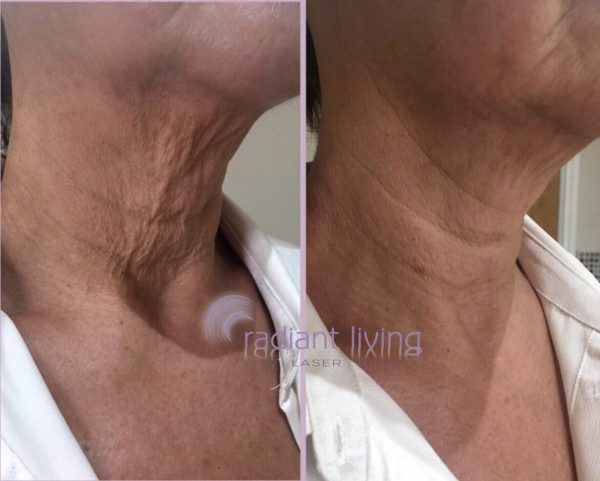 Can you tighten a saggy neck without surgery?