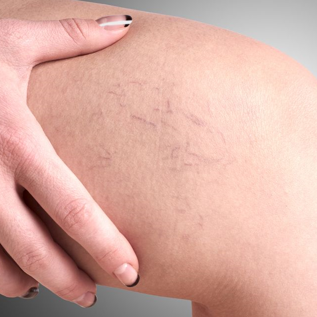 Spider veins on your legs