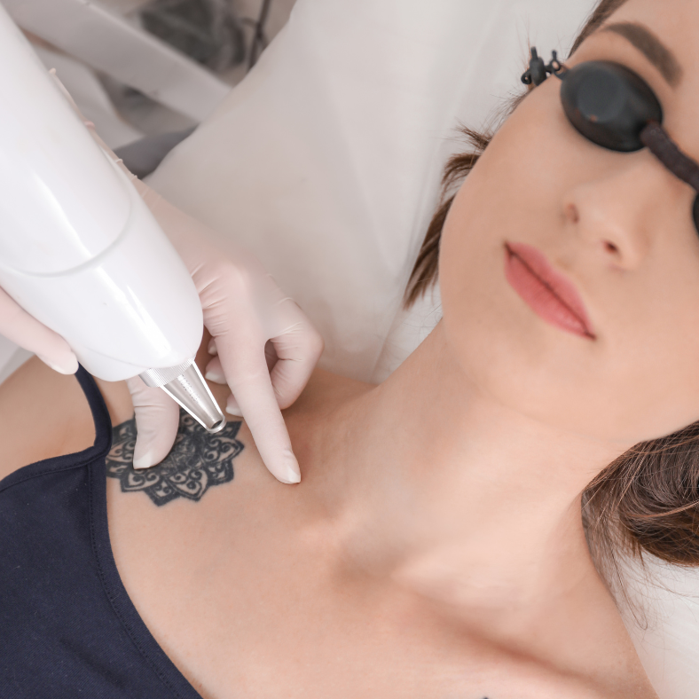 Picosure Laser vs Q Switch tattoo removal. Which is best?