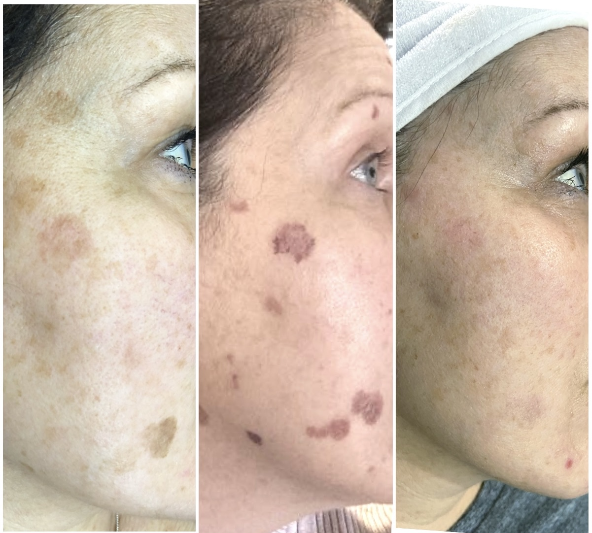 What to expect after laser treatment on your face.